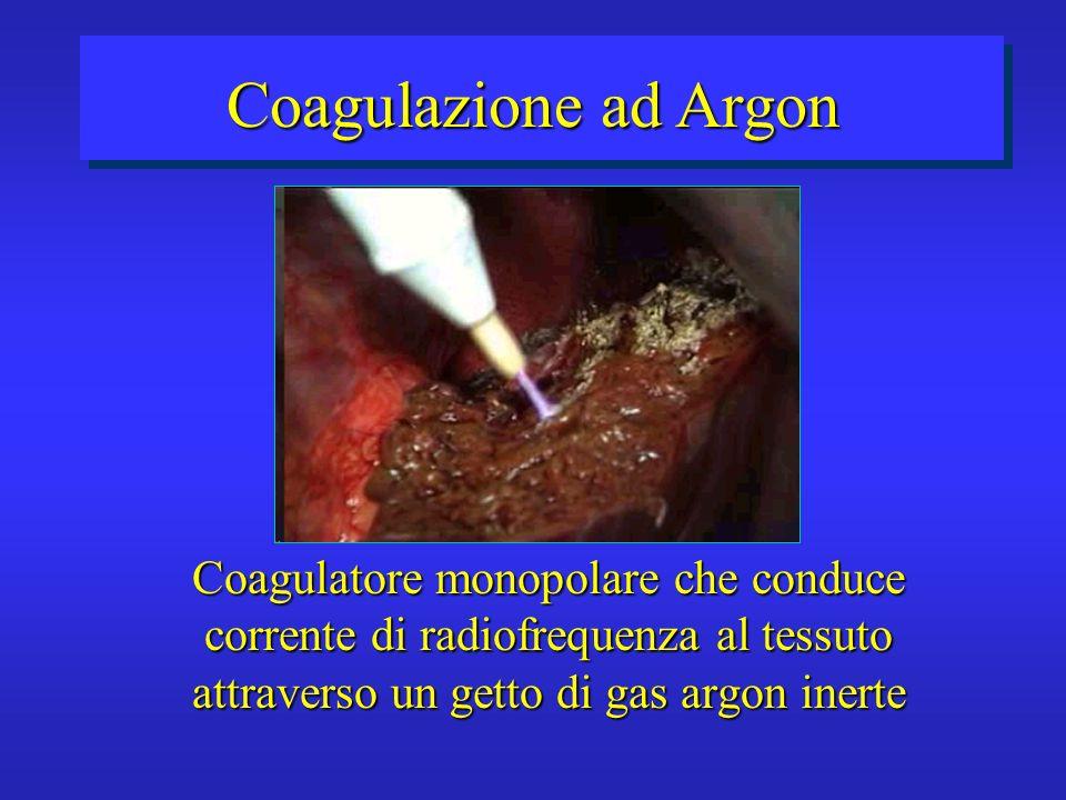 Coagulazione ad ArgonCoagulatore monopolare che conduce corrente di radiofrequenza al tessuto attraverso un getto di gas argon inerte.