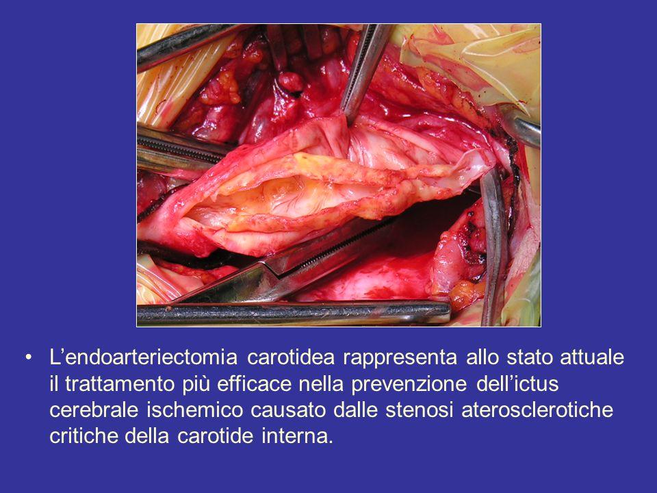L'endoarteriectomia carotidea rappresenta allo stato attuale il trattamento più efficace nella prevenzione dell'ictus cerebrale ischemico causato dalle stenosi aterosclerotiche critiche della carotide interna.
