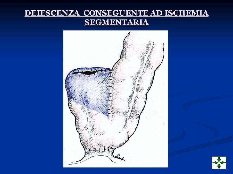 DEIESCENZA CONSEGUENTE AD ISCHEMIA SEGMENTARIA