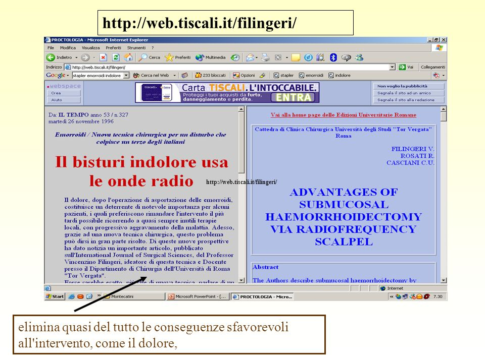 http://web.tiscali.it/filingeri/ http://web.tiscali.it/filingeri/ elimina quasi del tutto le conseguenze sfavorevoli all intervento, come il dolore,