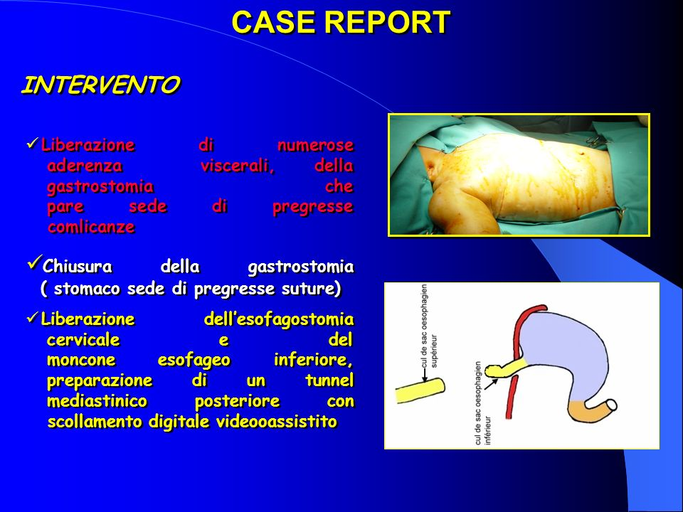 CASE REPORT INTERVENTO