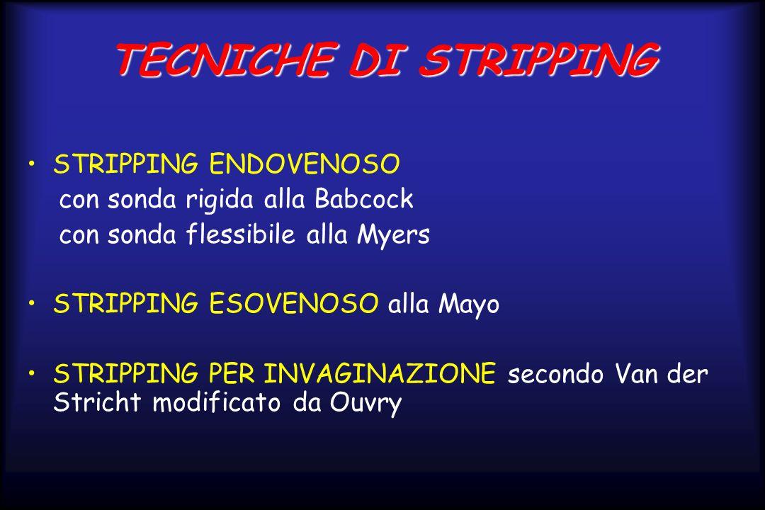 TECNICHE DI STRIPPING STRIPPING ENDOVENOSO