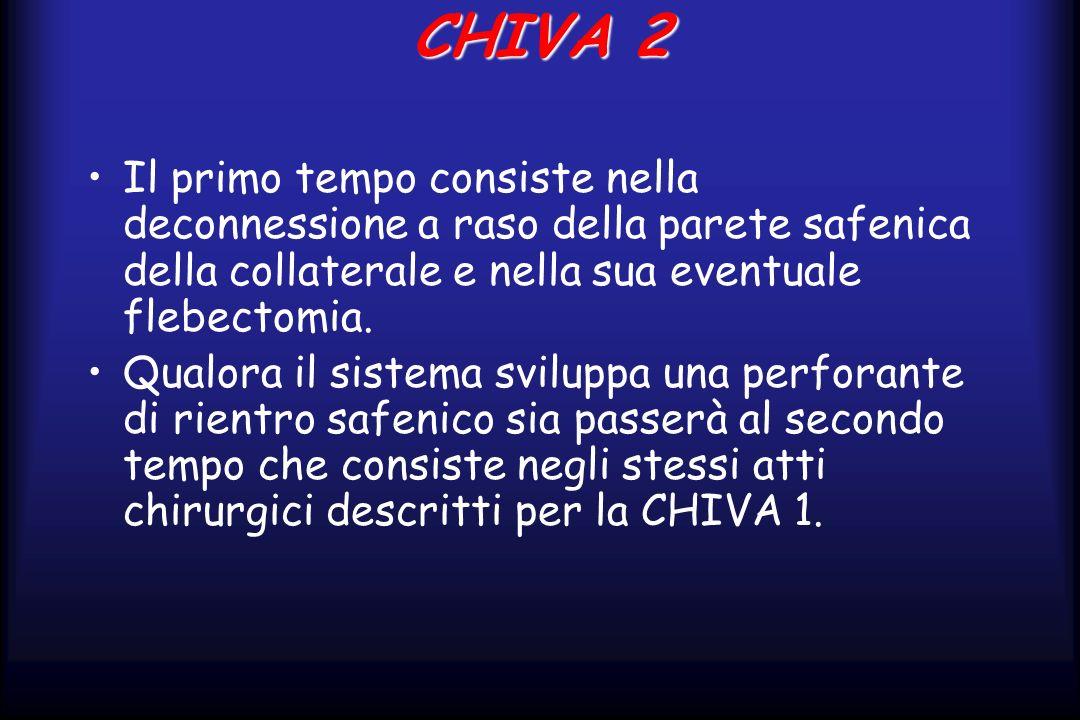 CHIVA 2 Il primo tempo consiste nella deconnessione a raso della parete safenica della collaterale e nella sua eventuale flebectomia.