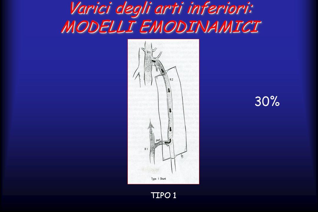 Varici degli arti inferiori: MODELLI EMODINAMICI