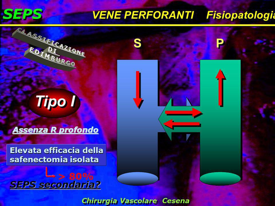 Tipo I SEPS CLASSIFICAZIONE DI EDIMBURGO S P VENE PERFORANTI