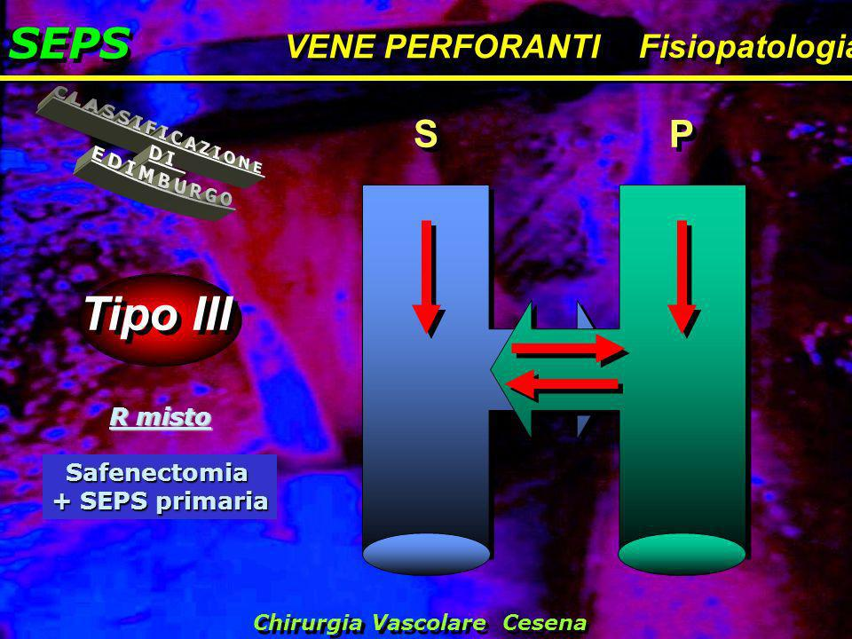 Tipo III SEPS CLASSIFICAZIONE DI EDIMBURGO S P VENE PERFORANTI