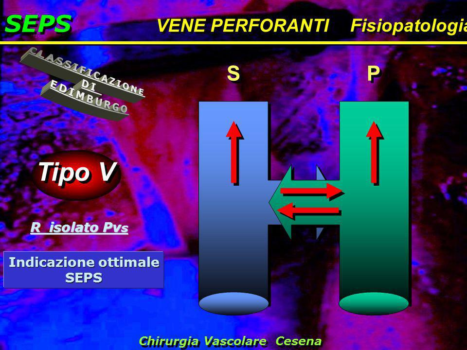 Tipo V SEPS CLASSIFICAZIONE DI EDIMBURGO S P VENE PERFORANTI