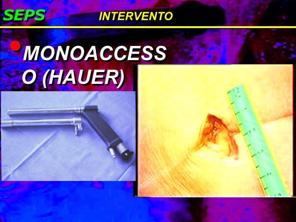 SEPS INTERVENTO MONOACCESSO (HAUER)