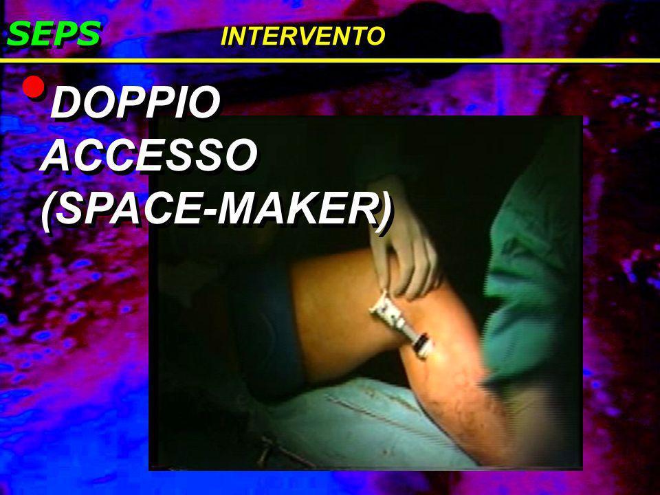 DOPPIO ACCESSO (SPACE-MAKER)