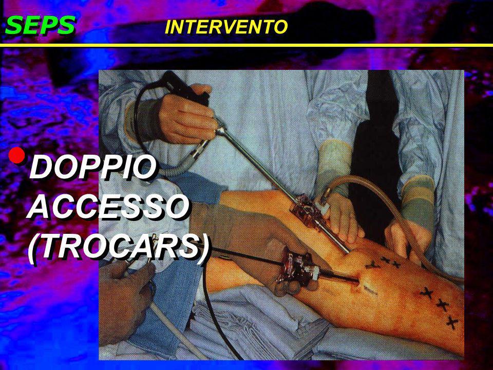 DOPPIO ACCESSO (TROCARS)