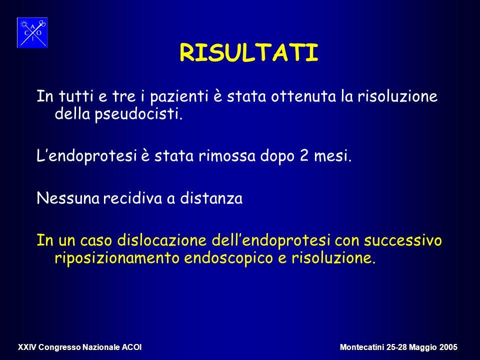 RISULTATI In tutti e tre i pazienti è stata ottenuta la risoluzione della pseudocisti. L'endoprotesi è stata rimossa dopo 2 mesi.