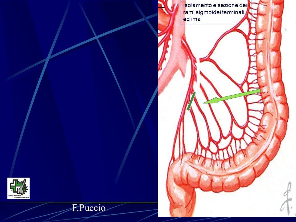 Isolamento e sezione dei rami sigmoidei terminali ed ima