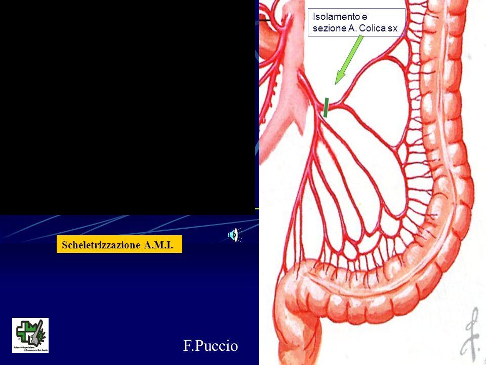 F.Puccio Scheletrizzazione A.M.I. Isolamento e sezione A. Colica sx