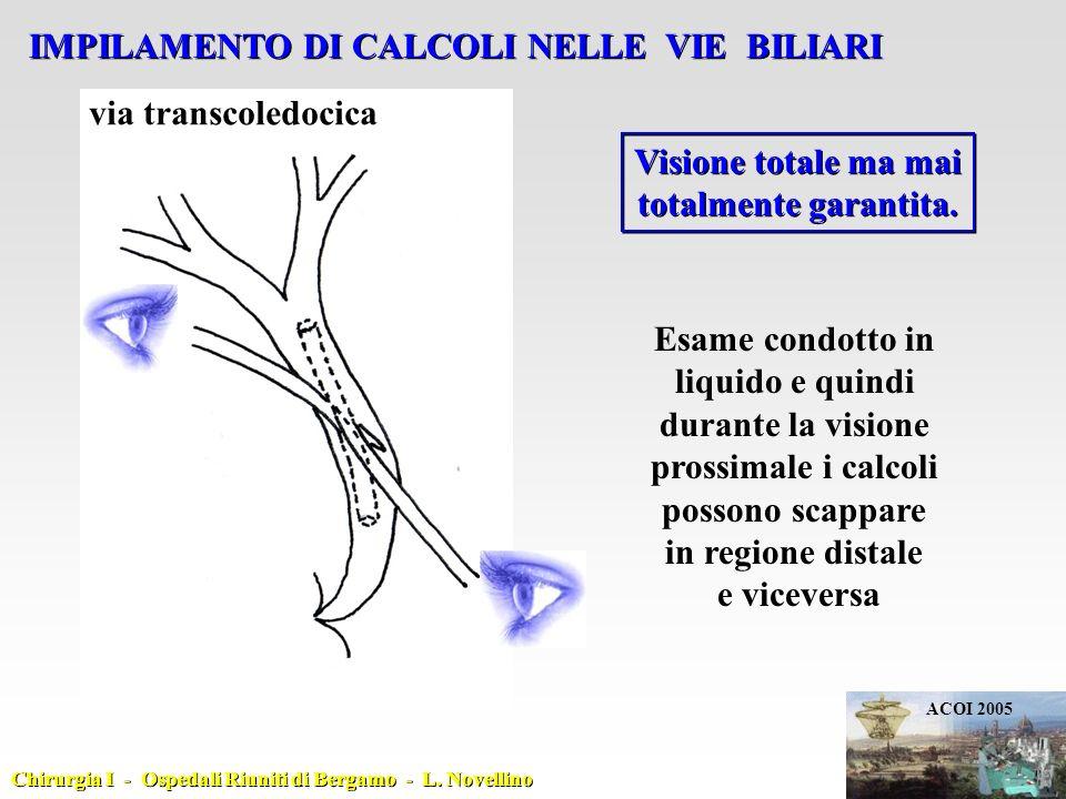 IMPILAMENTO DI CALCOLI NELLE VIE BILIARI