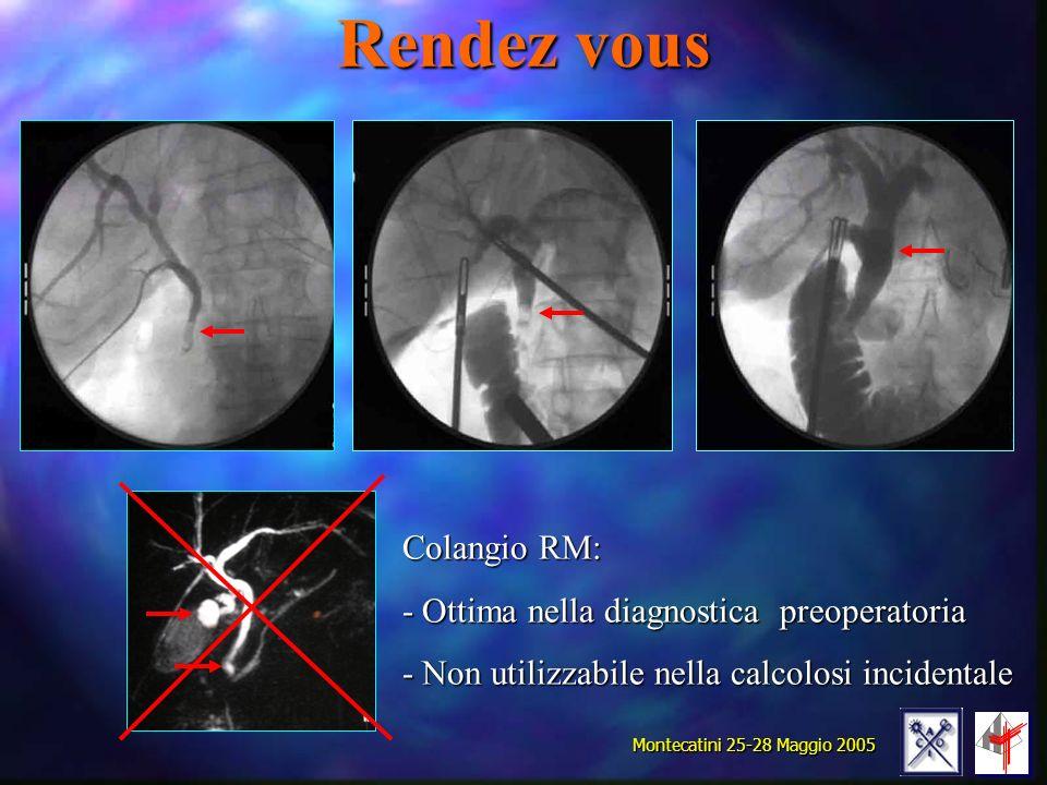 Rendez vous Colangio RM: Ottima nella diagnostica preoperatoria