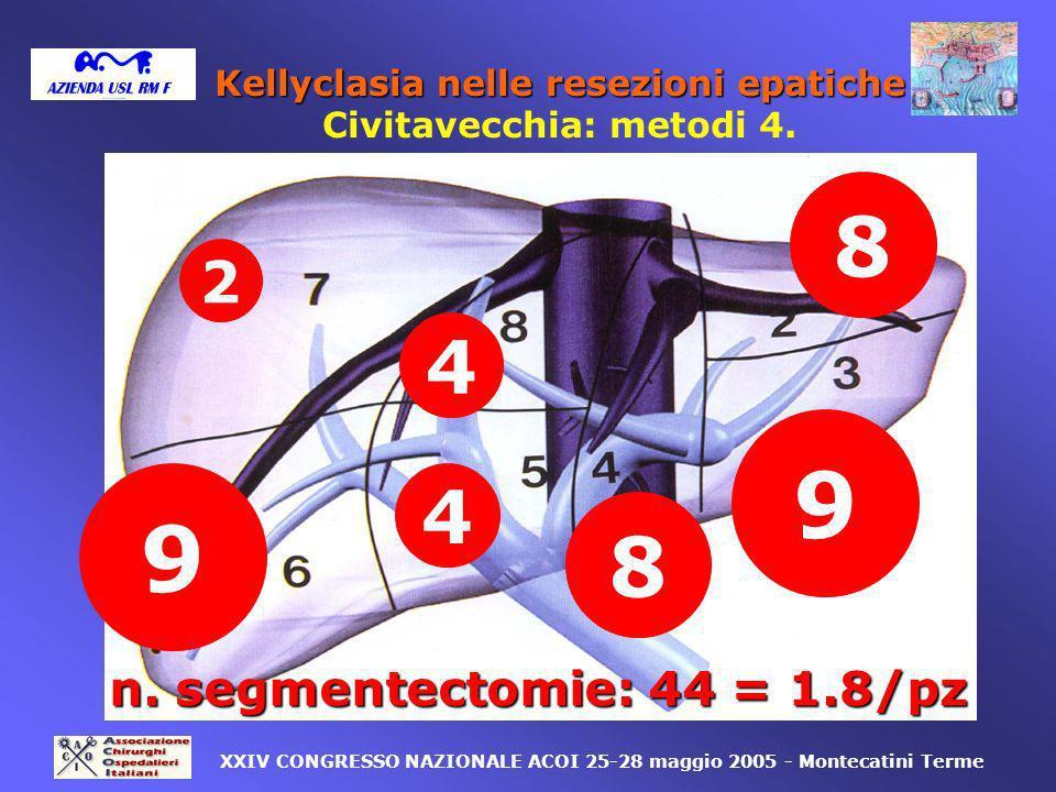 Kellyclasia nelle resezioni epatiche Civitavecchia: metodi 4.