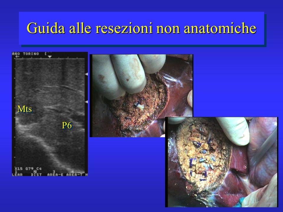 Guida alle resezioni non anatomiche