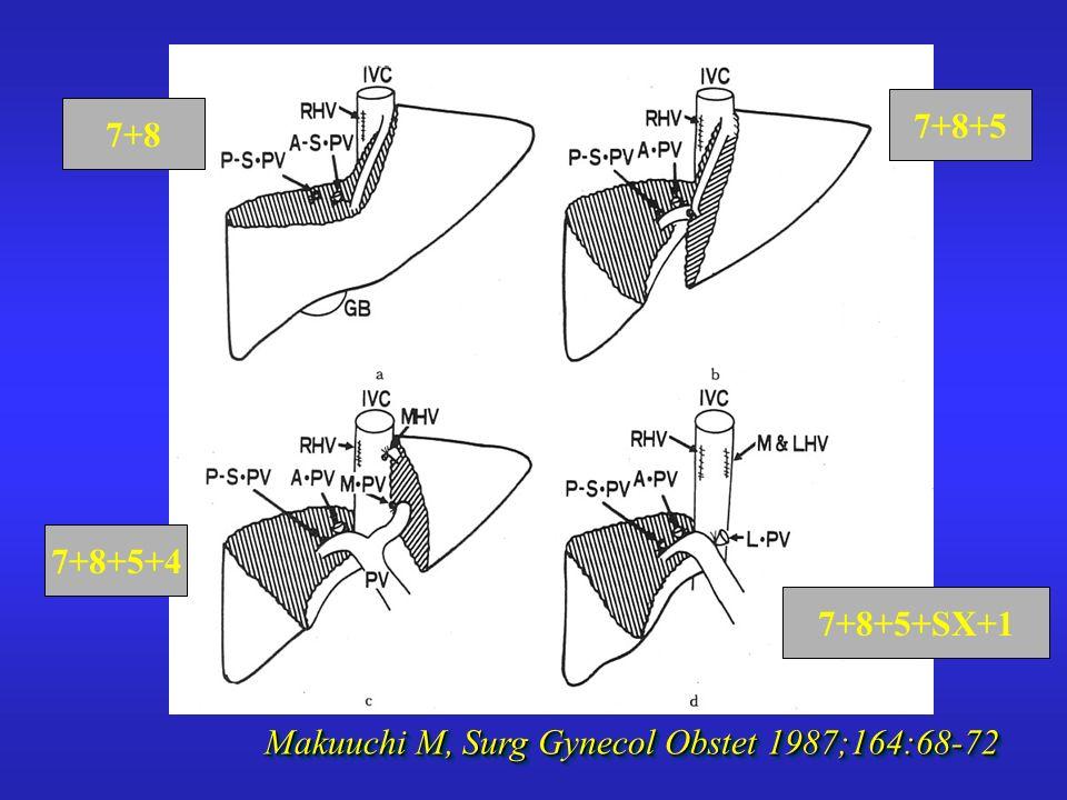 Makuuchi M, Surg Gynecol Obstet 1987;164:68-72