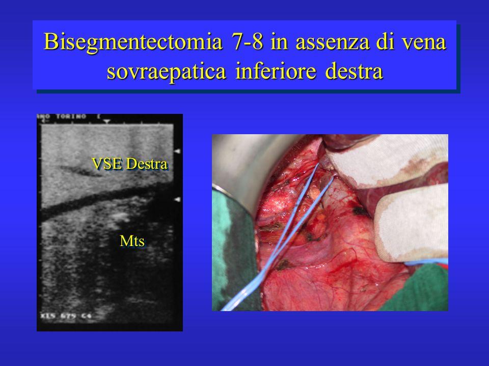 Bisegmentectomia 7-8 in assenza di vena sovraepatica inferiore destra