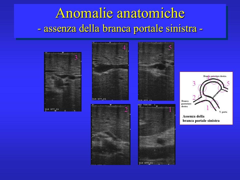 Anomalie anatomiche - assenza della branca portale sinistra -