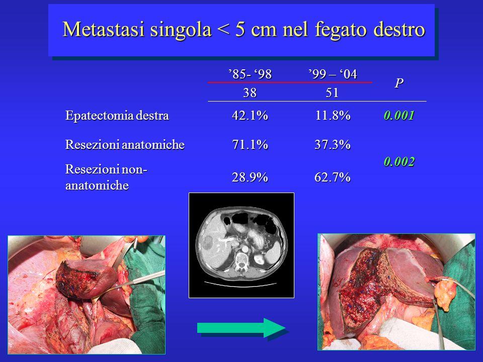 Metastasi singola < 5 cm nel fegato destro