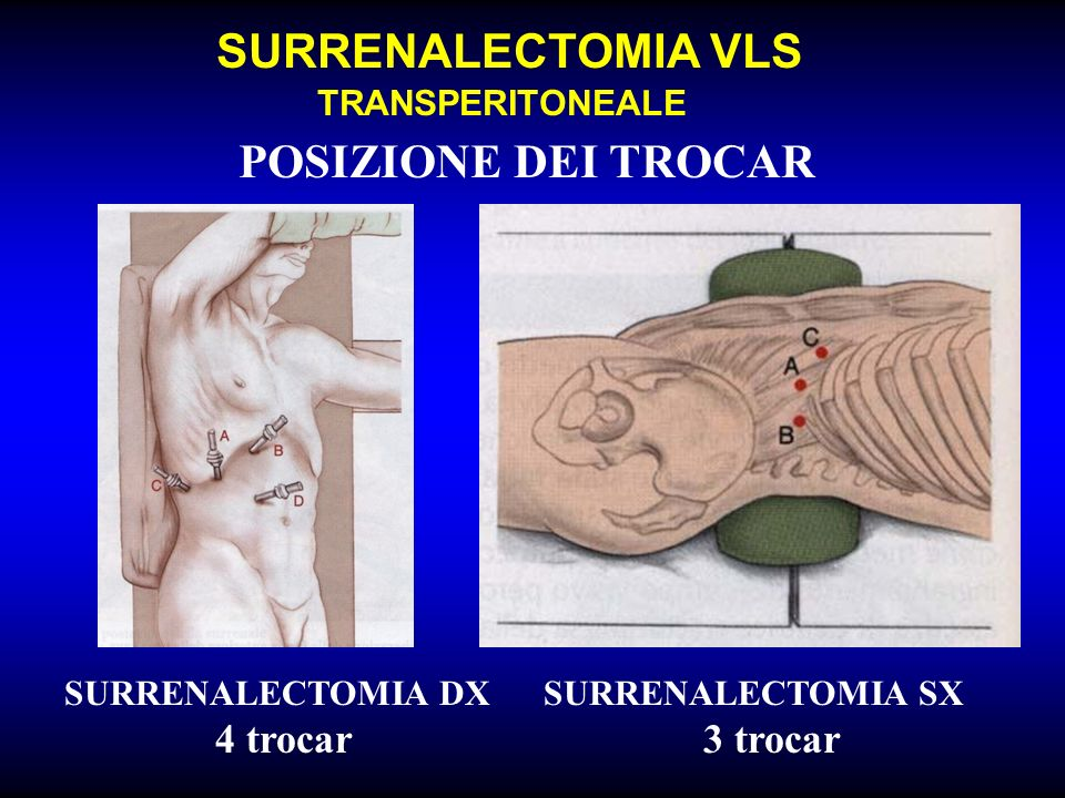 SURRENALECTOMIA VLS TRANSPERITONEALE