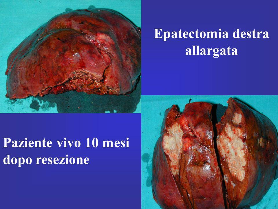 Epatectomia destra allargata