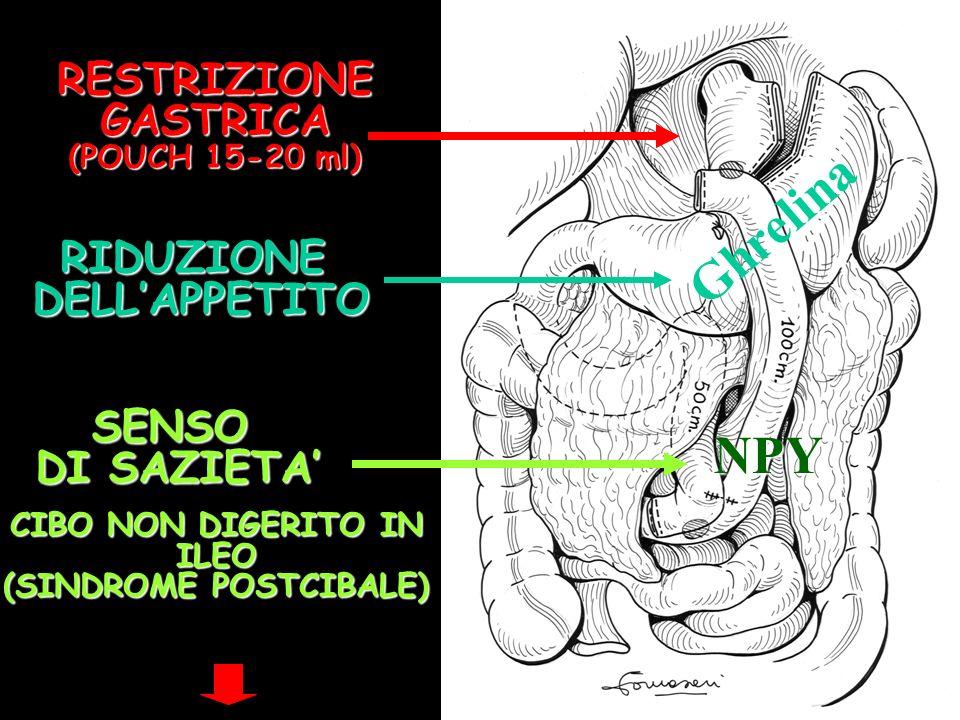 Ghrelina NPY RESTRIZIONE GASTRICA (POUCH 15-20 ml) RIDUZIONE