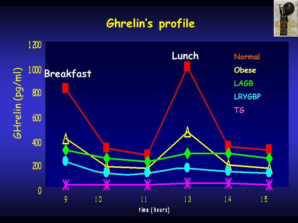 Ghrelin's profile Lunch Breakfast GHrelin (pg/ml) Normal Obese LAGB