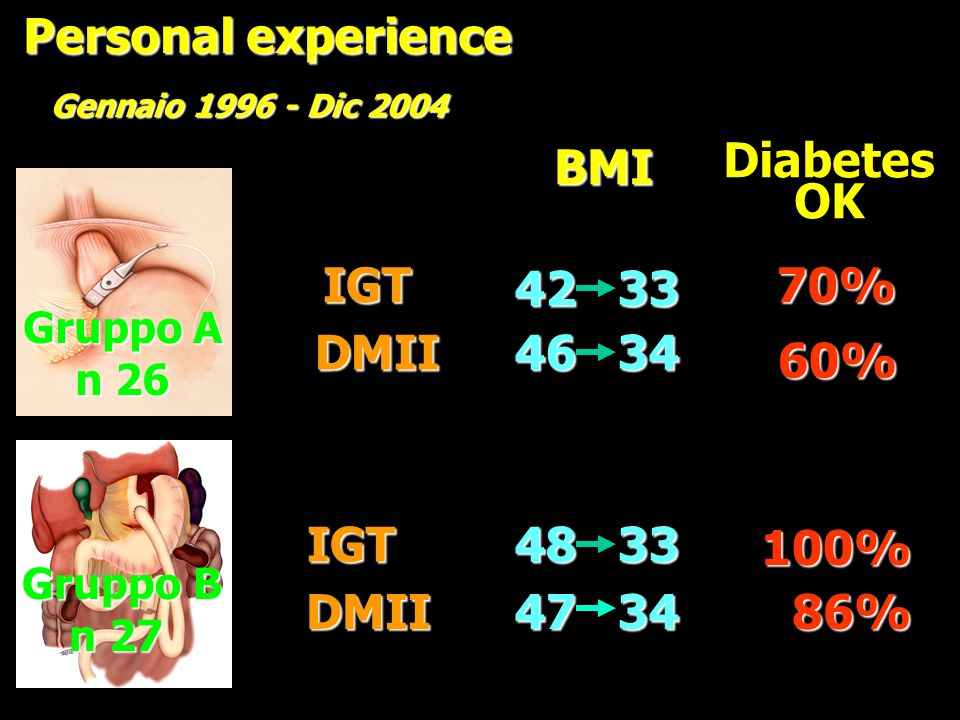Personal experience BMI Diabetes OK IGT 42 33 70% DMII 46 34 60% IGT