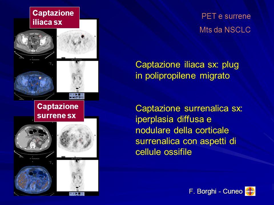 Captazione iliaca sx: plug in polipropilene migrato