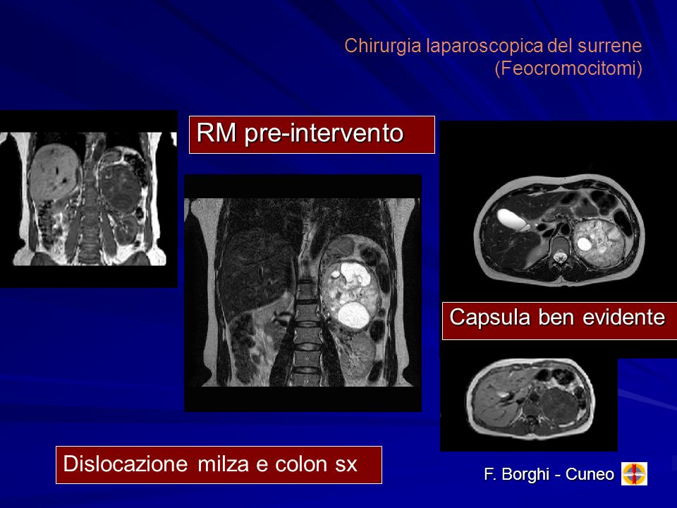 Chirurgia laparoscopica del surrene (Feocromocitomi)
