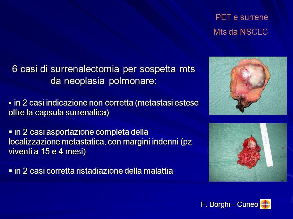 6 casi di surrenalectomia per sospetta mts da neoplasia polmonare: