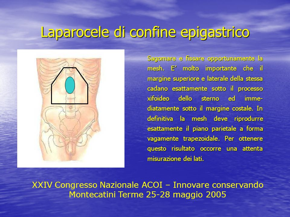 Laparocele di confine epigastrico