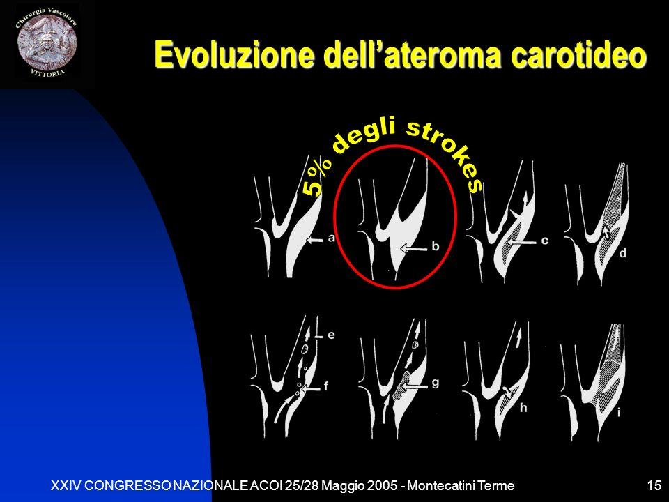 Evoluzione dell'ateroma carotideo