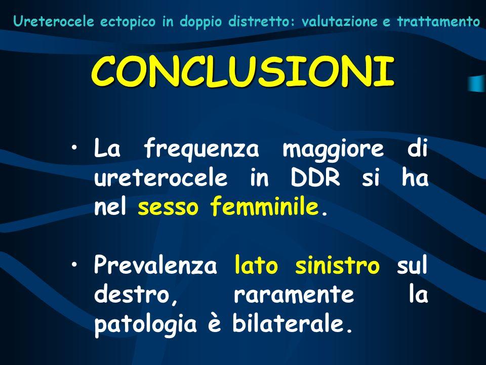 Ureterocele ectopico in doppio distretto: valutazione e trattamento