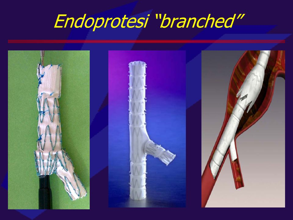 Endoprotesi branched
