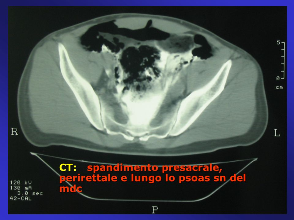 CT: spandimento presacrale, perirettale e lungo lo psoas sn del mdc