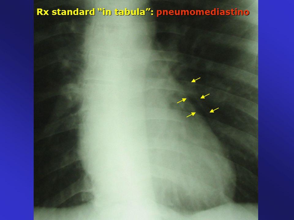 Rx standard in tabula : pneumomediastino