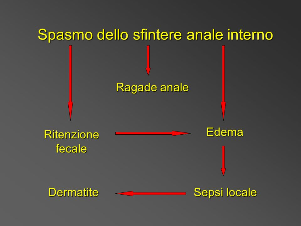 Spasmo dello sfintere anale interno