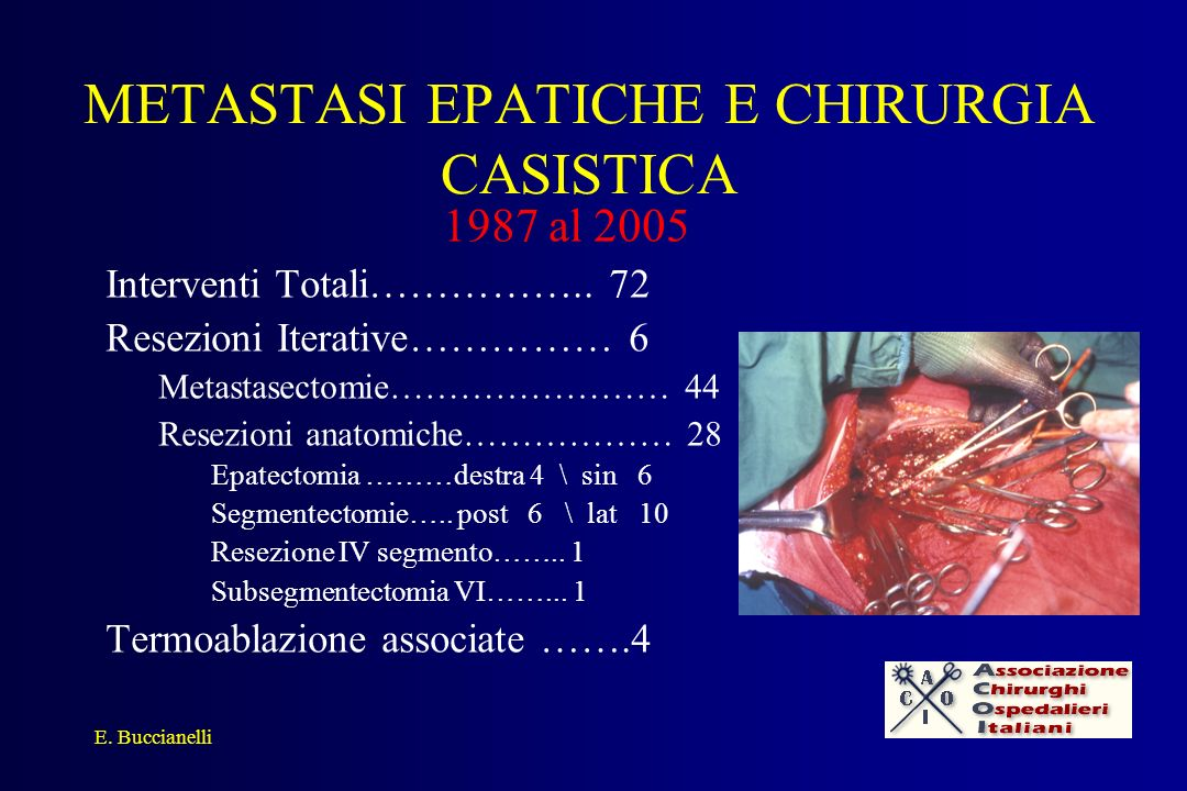 METASTASI EPATICHE E CHIRURGIA CASISTICA