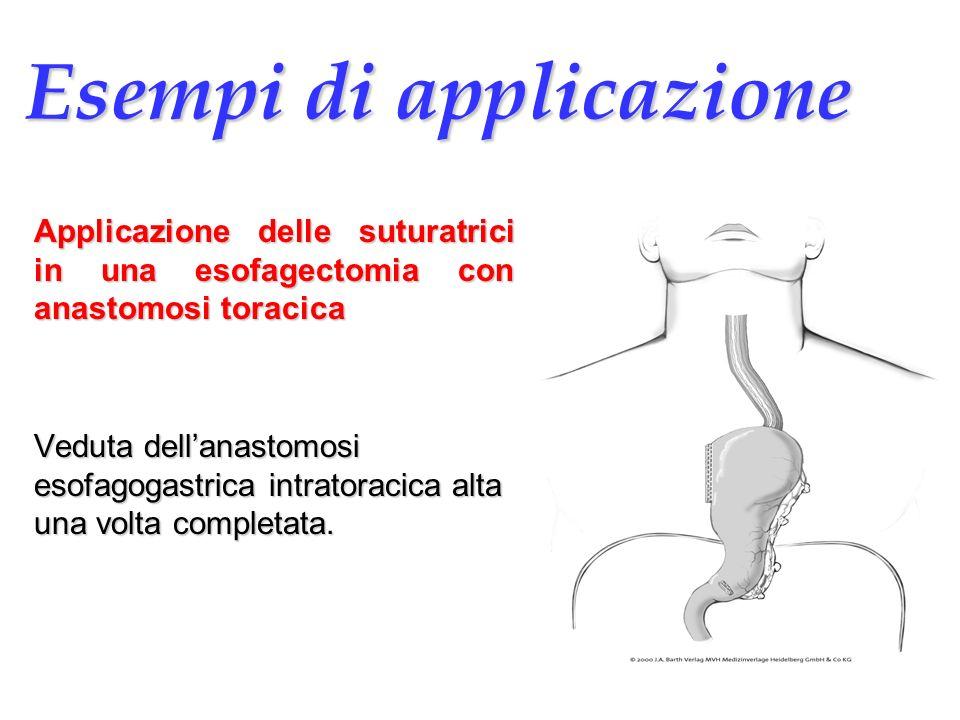 Esempi di applicazione