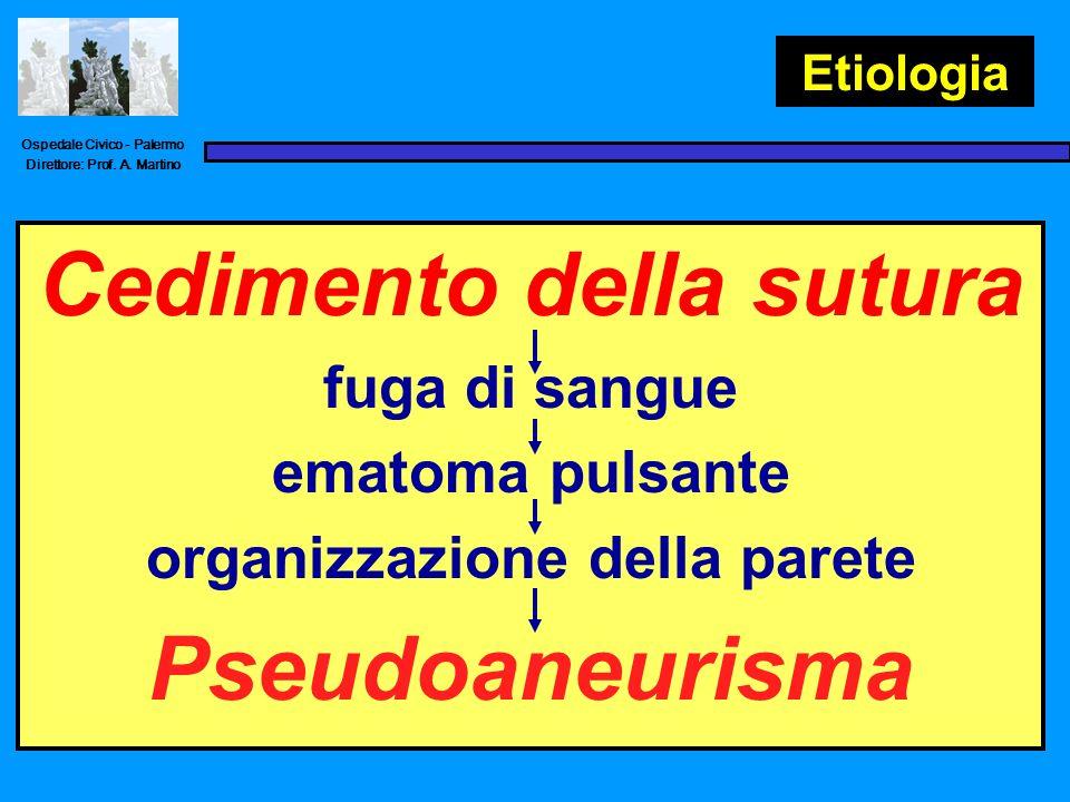 Cedimento della sutura Pseudoaneurisma