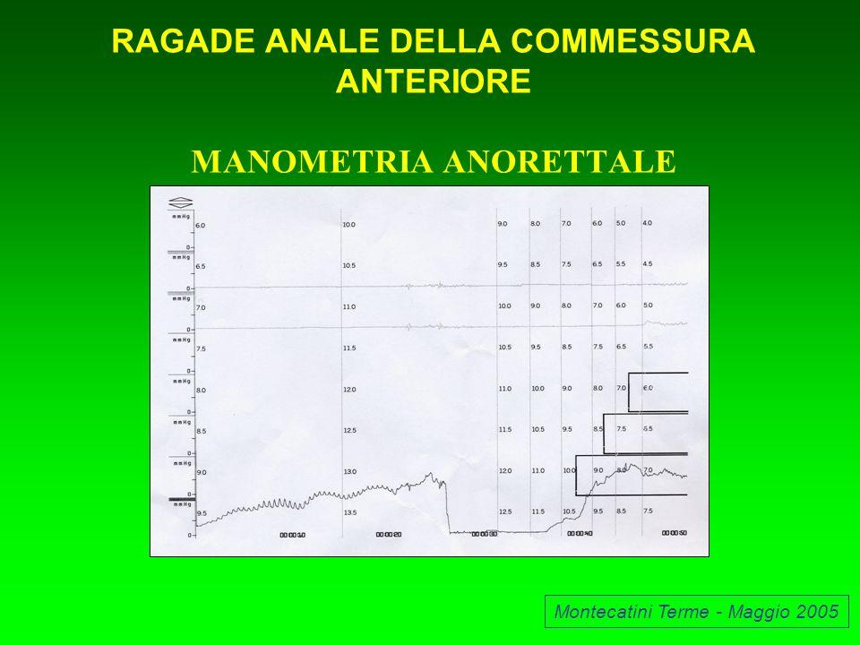 RAGADE ANALE DELLA COMMESSURA ANTERIORE MANOMETRIA ANORETTALE