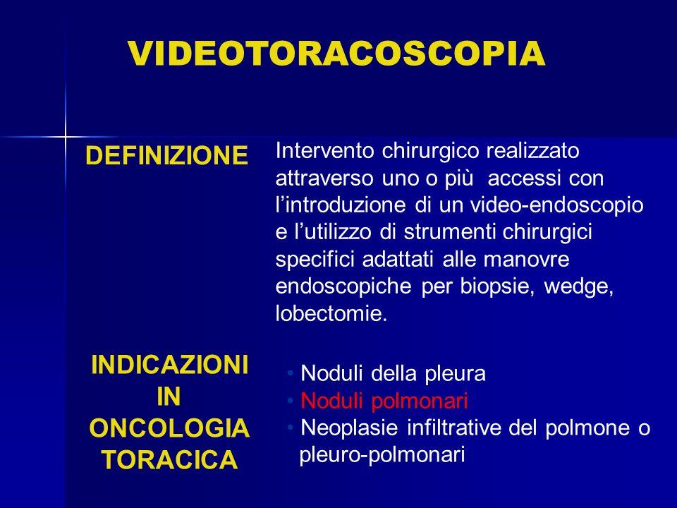 VIDEOTORACOSCOPIA DEFINIZIONE INDICAZIONI IN ONCOLOGIA TORACICA
