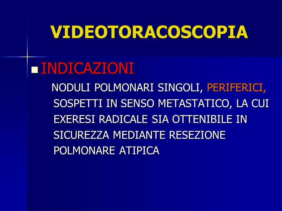 VIDEOTORACOSCOPIA INDICAZIONI