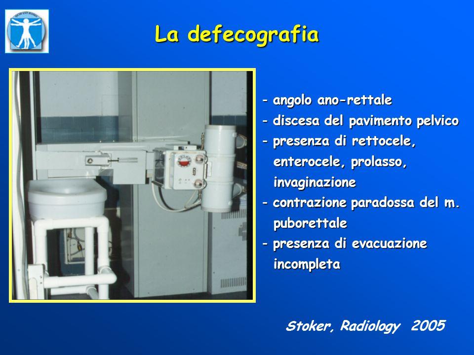 La defecografia angolo ano-rettale discesa del pavimento pelvico