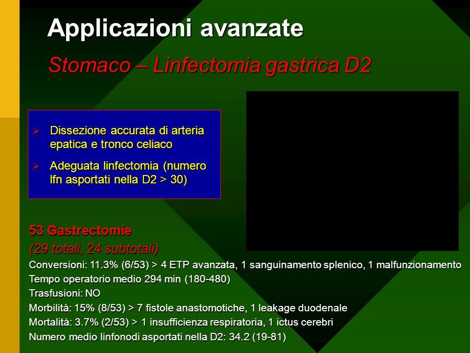 Applicazioni avanzate Stomaco – Linfectomia gastrica D2