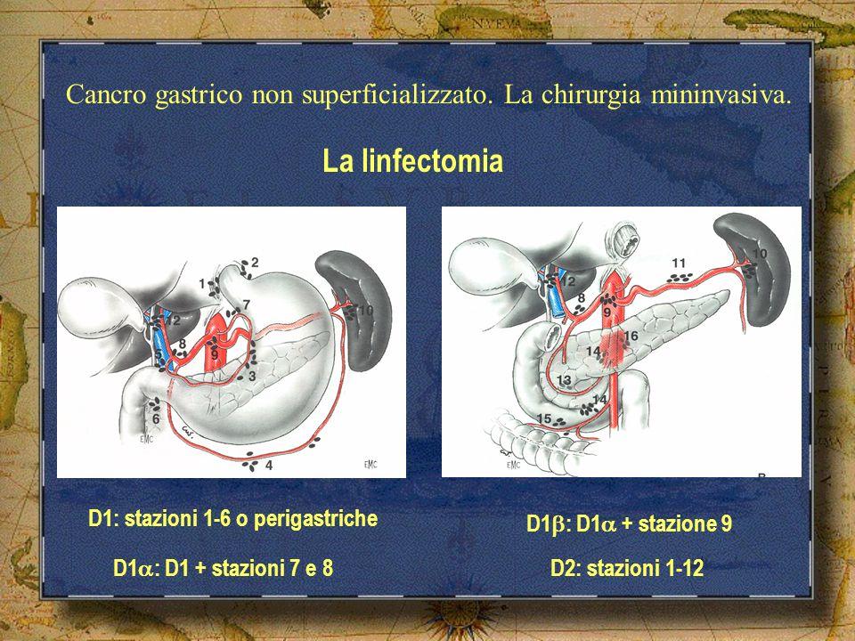 Cancro gastrico non superficializzato. La chirurgia mininvasiva.