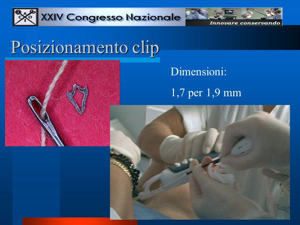 Posizionamento clip Dimensioni: 1,7 per 1,9 mm